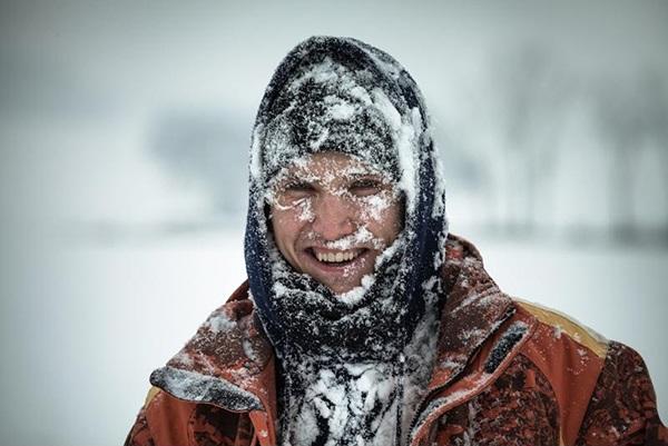 سرمازدگی در کوهنوردی