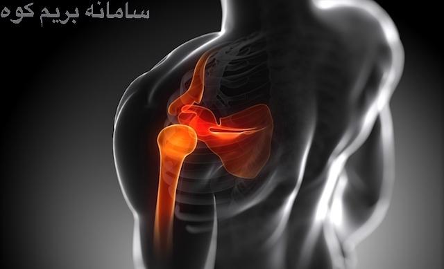 شانه ی انسان مفصلی پیچیده و مستحکم می باشد وعموما آسیب دیدگی های این مفصل، شایع نمی باشد!