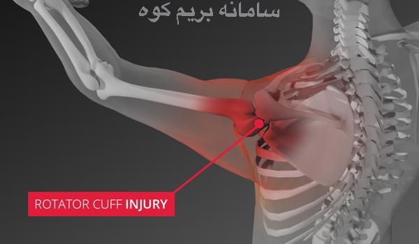 ماهیچه های گرداننده شانه، از 4 عضله مختلف تشکیل شده اند که مفصل را احاطه می کنند . این 4 عضله عبارتند از : عضلات بالاخاری ، زیرخاری، گرد کوچک و تحت کتفی
